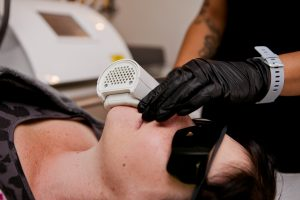 ipl-acne-treatment-bromley