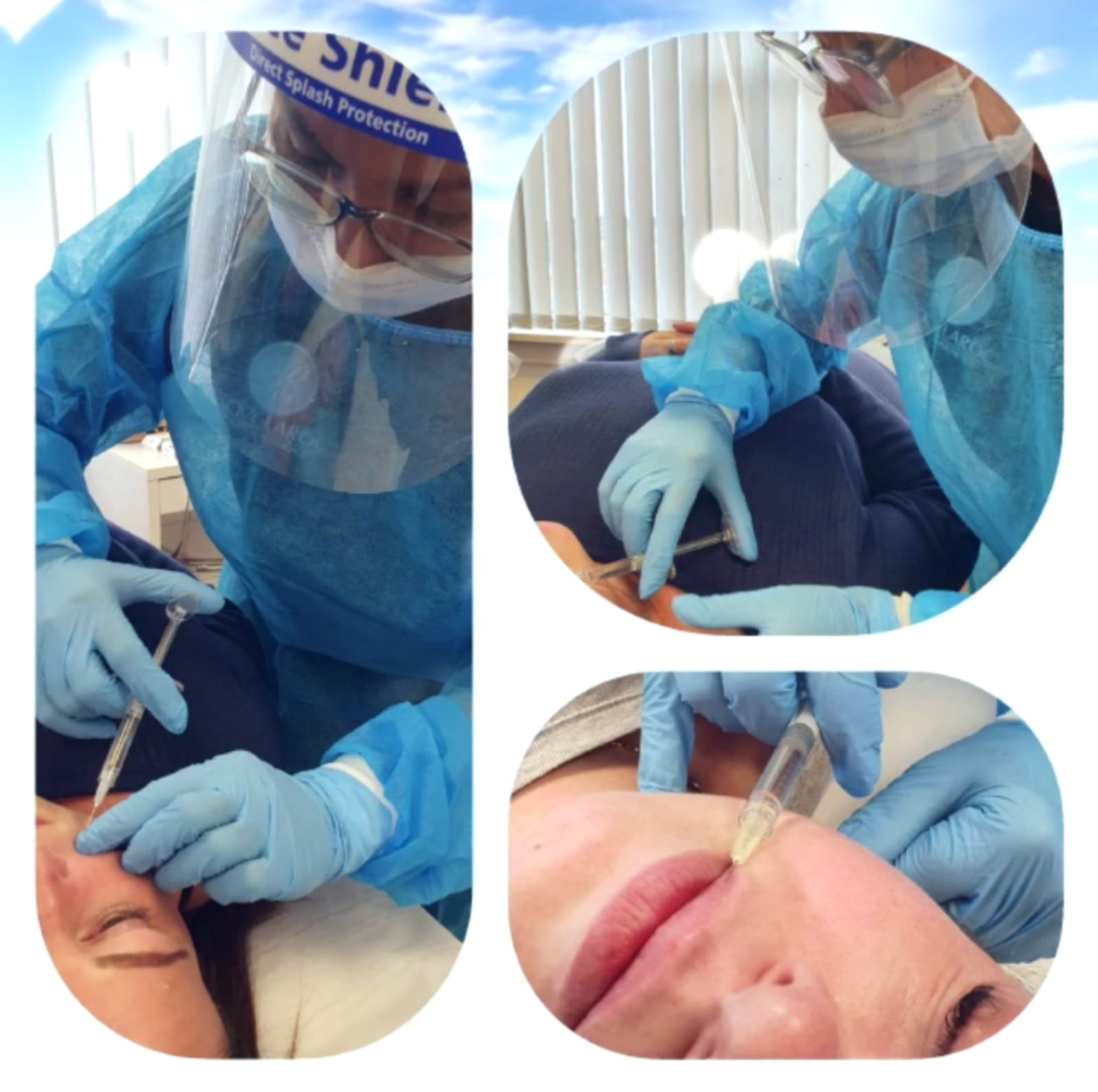 dermal-fillers-in-kent