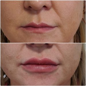 lip-fillers-bromley