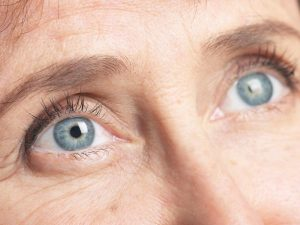 anti-wrinkle-injections-crows-feet