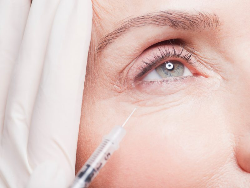 anti-wrinkle-injections-kent